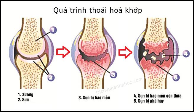 Quá trình thoái hoá xương khớp